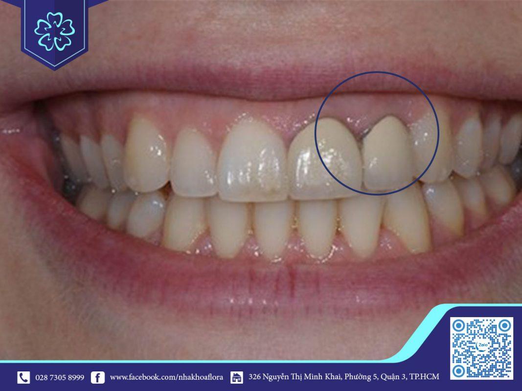Nướu bị đen khi bọc răng sứ kim loại
