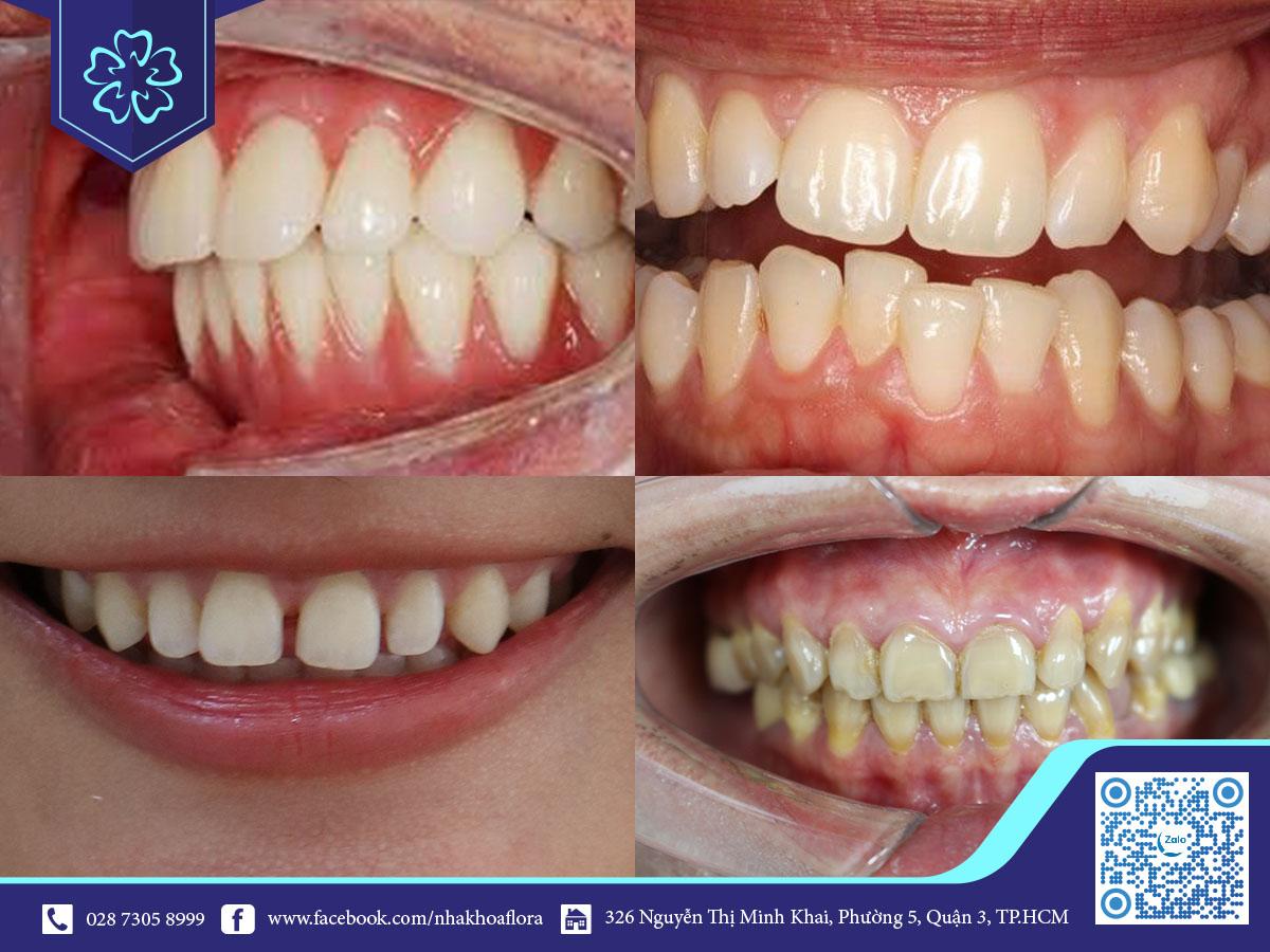 Những khuyết điểm mà bọc răng sứ có thể khắc phục