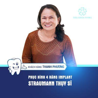 Phuc hinh implant_KH Thanh Phương