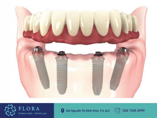 Phương pháp cấy ghép Implant toàn hàm