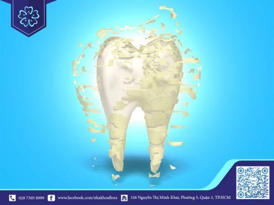 chăm sóc răng toàn diện
