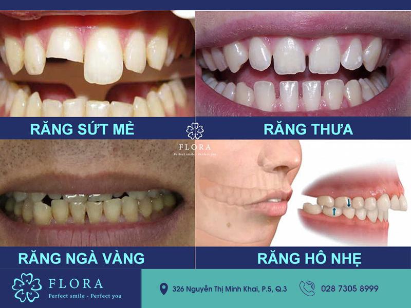 các trường hợp bọc răng sứ flora