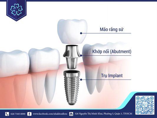 Cấu trúc răng Implant