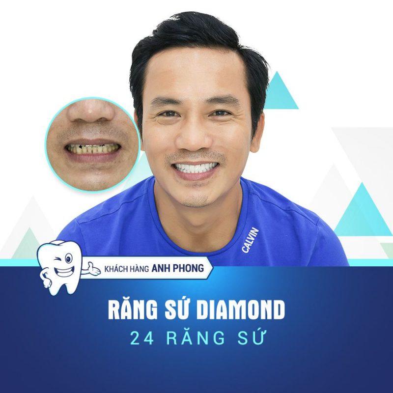 KH Anh Phong