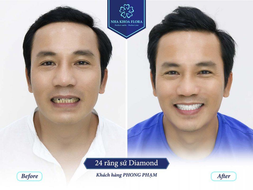 khách hàng phục hình răng sứ