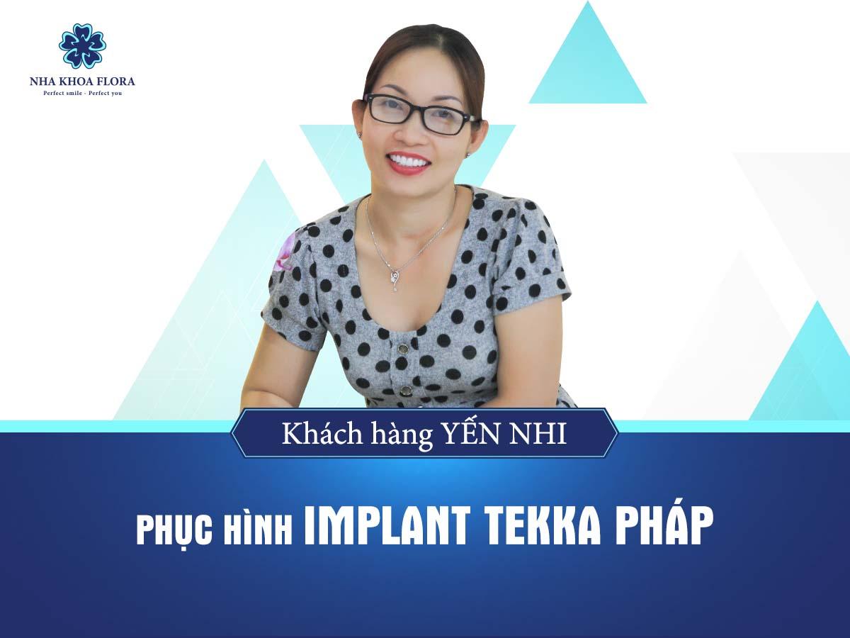 Khách hàng cấy ghép implant - bác sĩ Nguyễn Đắc Minh phụ trách theo công nghệ 3D Sophis độc quyền