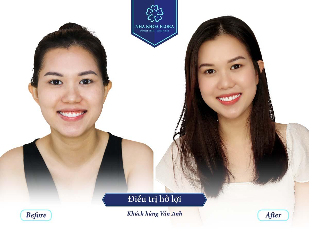 Khách hàng phục hình răng sứ - bác sĩ Nguyễn Đắc Minh phụ trách