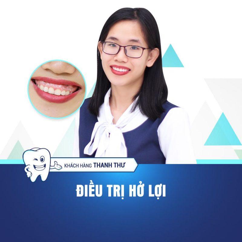 thanh thu điều trị cười hở lợi