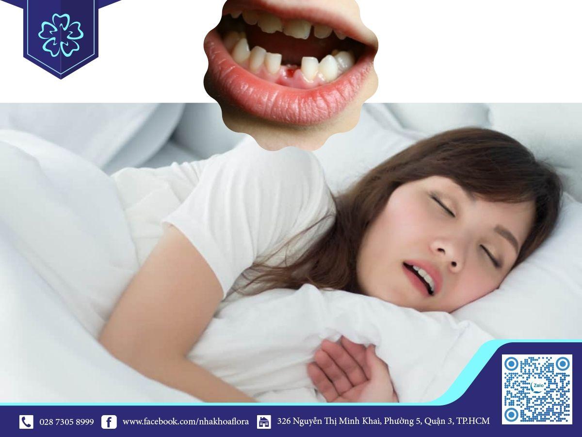 Nằm mơ thấy rụng răng không chảy máu là điềm báo gì?
