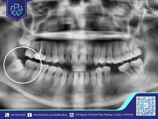 Nhổ răng khôn có nguy hiểm không?