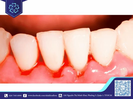 Chảy máu chân răng thường xuyên là bệnh viêm nướu