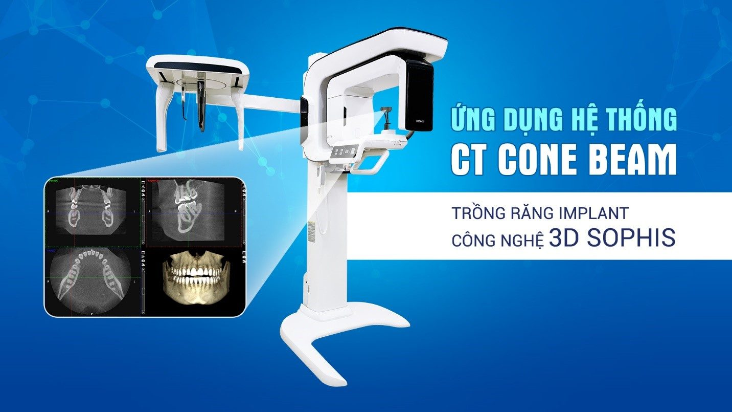 CT cone beam trong ứng dụng 3D sophis