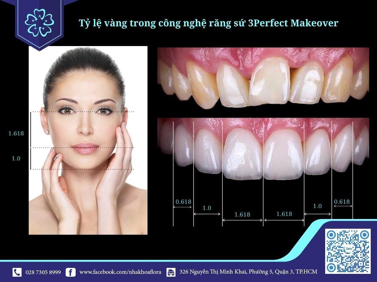 Ứng dụng tỷ lệ vàng trong công nghệ bọc răng sứ 3Perfect Makeover tại Nha Khoa Flora