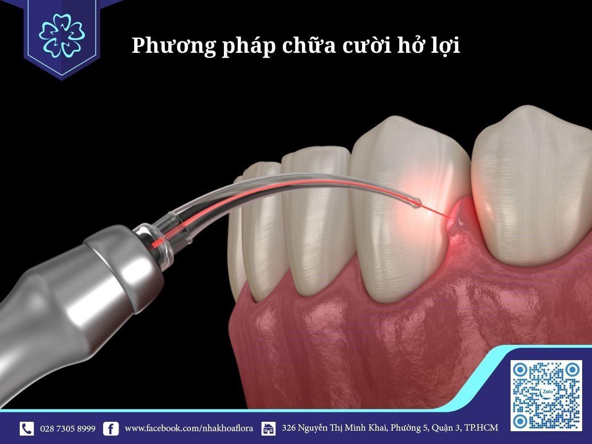 Chứa cười hở lợi hương pháp cắt nướu thẩm mỹ bằng công nghệ Laser