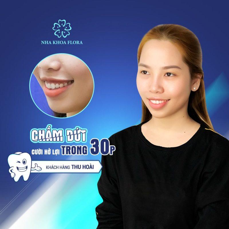 khách hàng Thu Hoài - Điều trị cười hở lợi