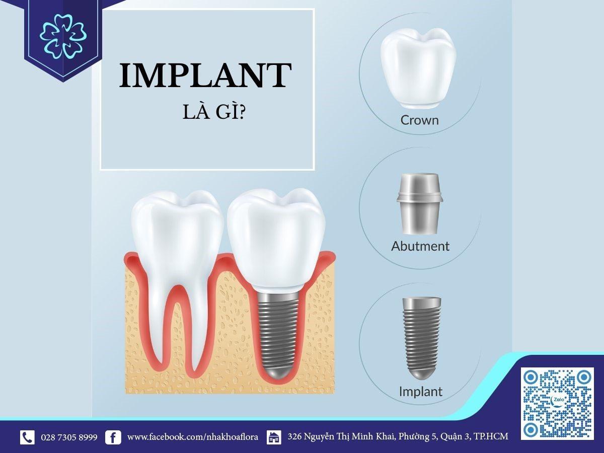 cấy ghép răng Implant là gì