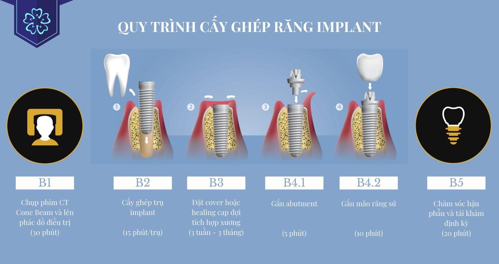 Quy trình cấy ghép implant công nghệ 3D Sophis