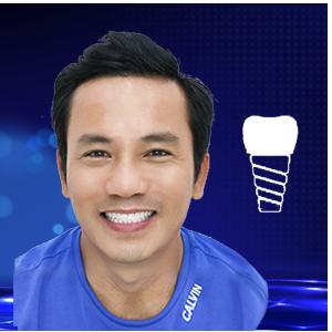 dịch vụ trồng răng implant
