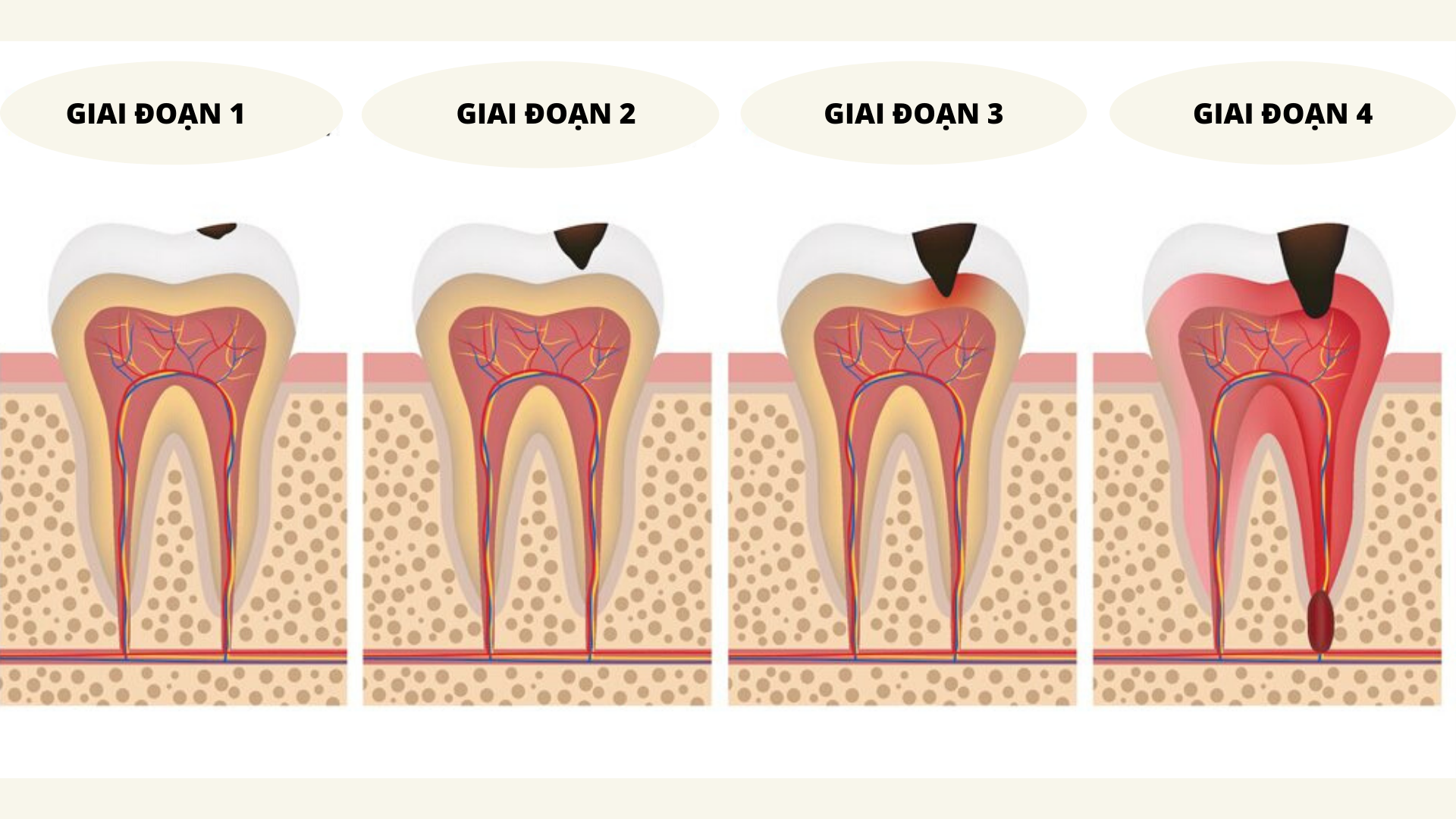 răng sữa bị sâu