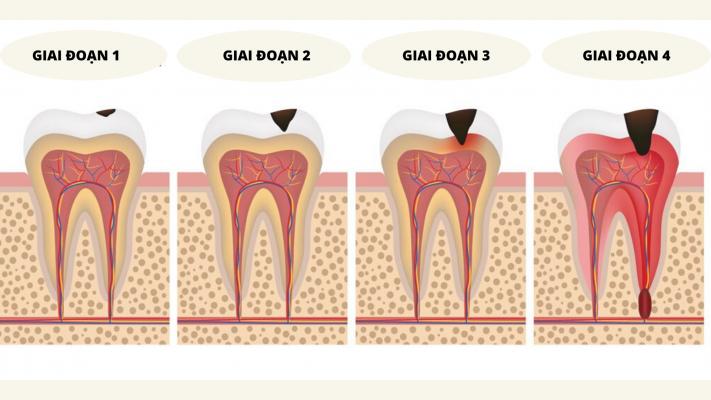 chữa đau răng sâu tại nhà