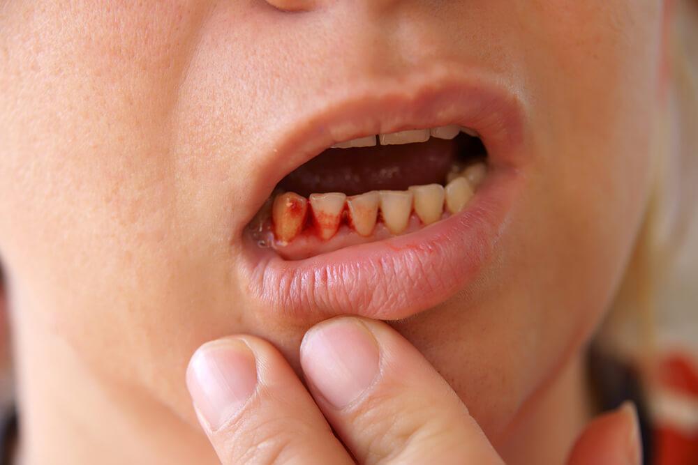 viêm nha chu khiến chảy máu răng