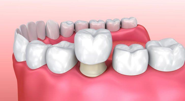 răng sâu lồi thịt