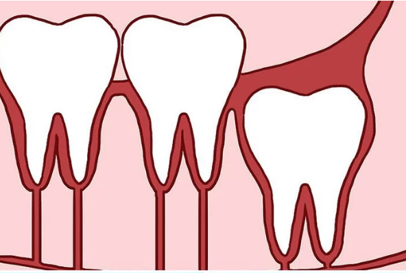 Răng khôn mọc thẳng đứng