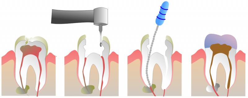 răng sâu vào tủy