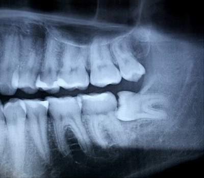 Răng khôn mọc đâm vào răng số 7 - Nên nhổ sớm
