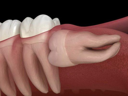 Răng khôn hàm dưới mọc nằm ngang đâm vào răng số 7