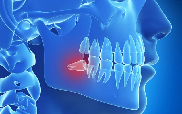 Răng khôn mọc lệch nên nhổ sớm để tránh những ảnh hưởng xấu