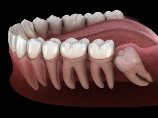 Răng khôn mọc lệch ảnh hưởng răng số 7