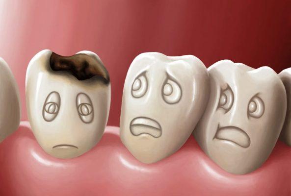 Sâu răng gây mùi hôi ở miệng