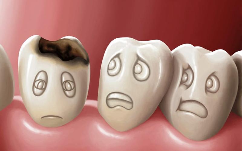 nhổ răng số 8 bị sâu