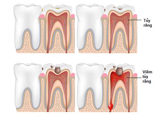 răng sâu số 8 hàm trên