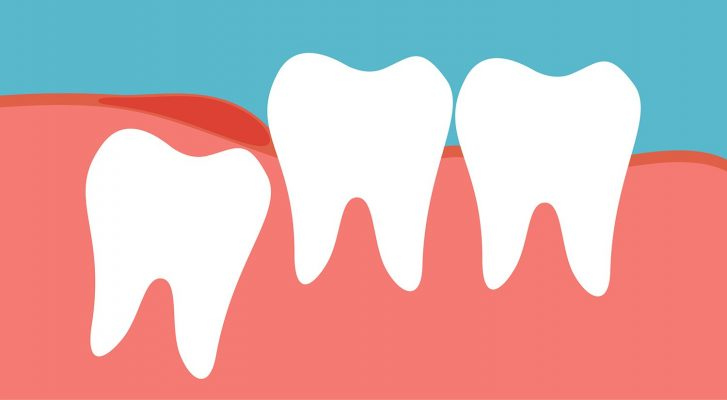 Răng khôn - nhổ răng khôn bao nhiêu tiền