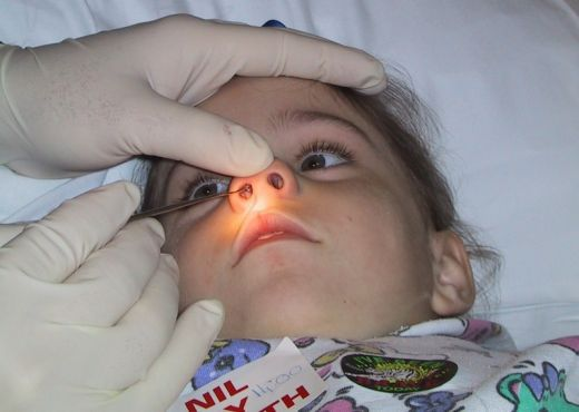 Bé bị hôi miệng do các dị vật trong mũi