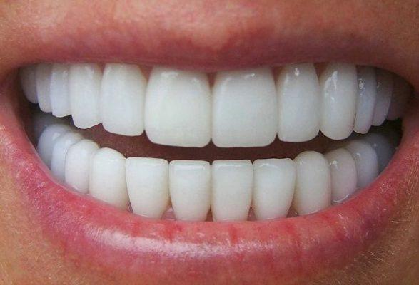 Bọc lại răng sứ mới (ảnh minh họa)