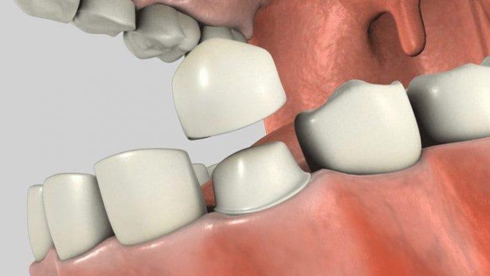 Bọc răng sứ mất bao lâu? (ảnh minh họa)