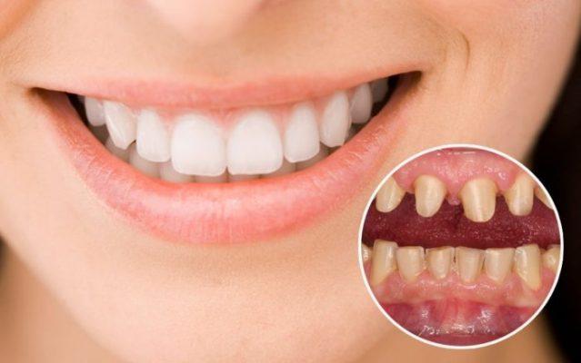 Bọc răng sứ thẩm mỹ mất thời gian bao lâu? (ảnh minh họa)