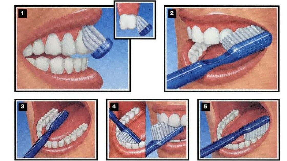 Mắc bệnh tim mạch do mất răng