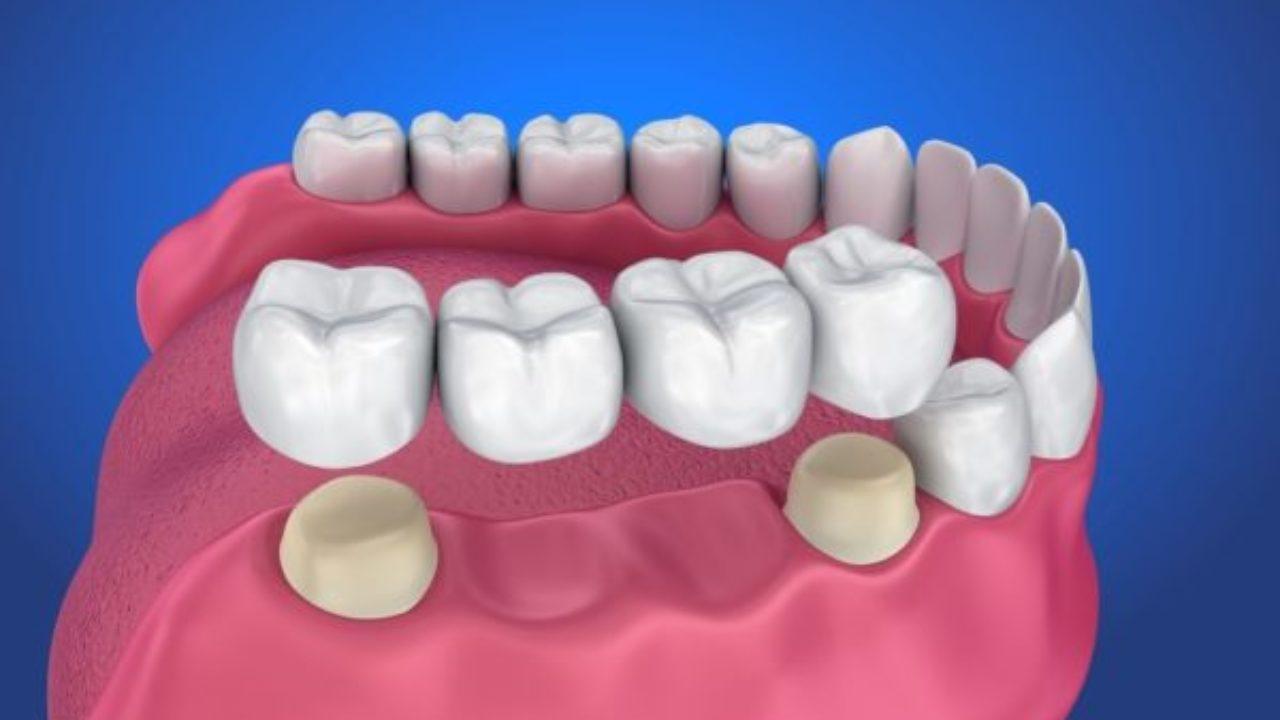 mất răng lâu năm