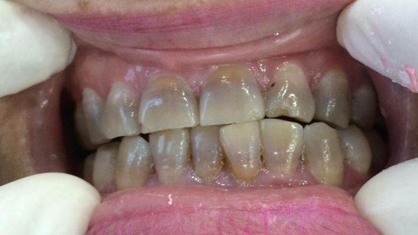 Răng bị nhiễm màu, nhiễm kháng sinh nặng (ảnh minh họa)