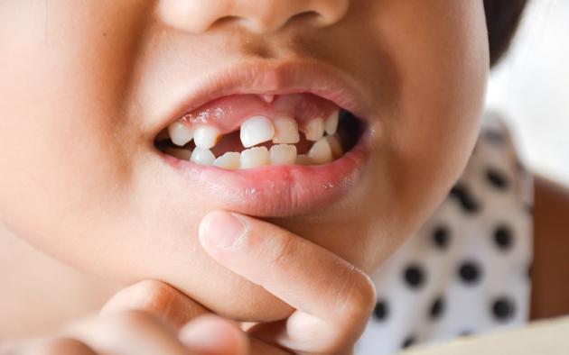 Độ tuổi nào phù hợp để bọc răng sứ (ảnh minh họa)