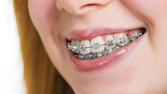 Nhổ răng khôn với mục đích thẩm mỹ như niềng răng sẽ không được bào hiểm y tế chi trả (ảnh minh họa)
