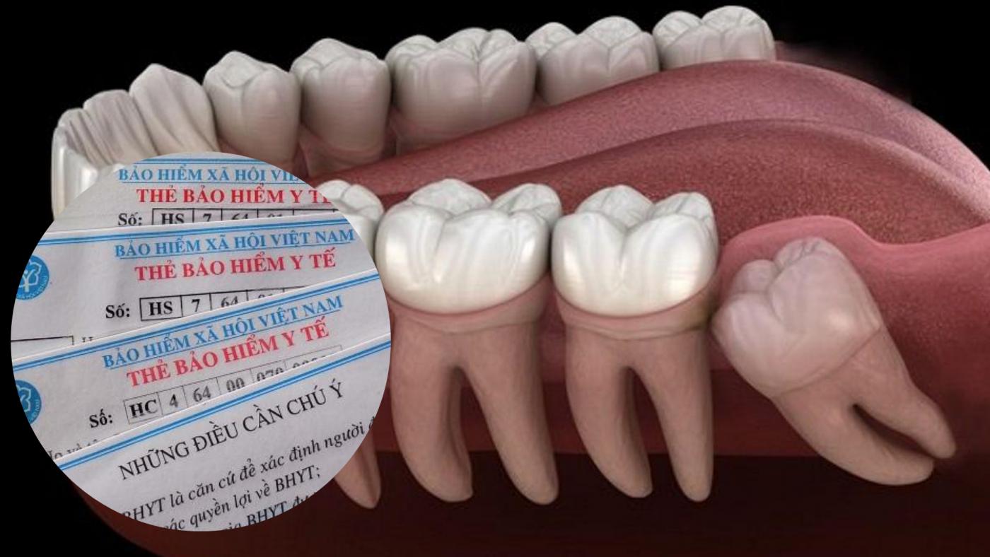 Nhổ răng khôn có được bảo hiểm y tế chi trả không? (ảnh minh họa)