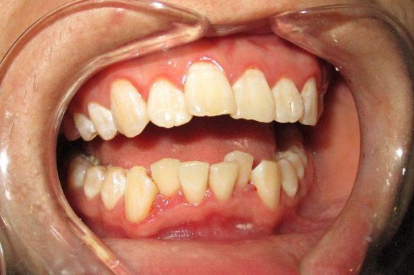 Răng mọc xô lệch (ảnh minh họa)