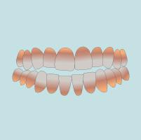 Răng nhiễm màu, kháng sinh