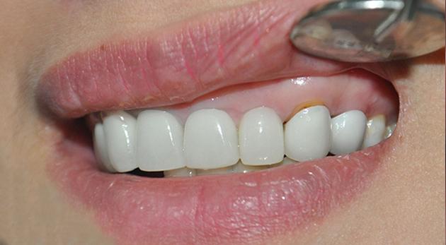Răng sứ bị hở do lựa chọn nha khoa kém uy tín (ảnh minh họa)