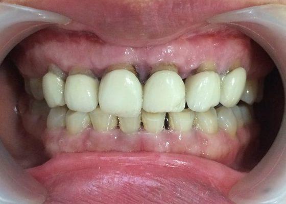 Răng sứ giá rẻ (ảnh minh họa)
